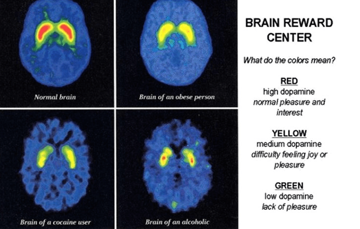 your sugar or your brain